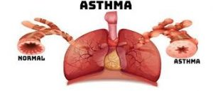 Asthma and Allergies-Double Trouble